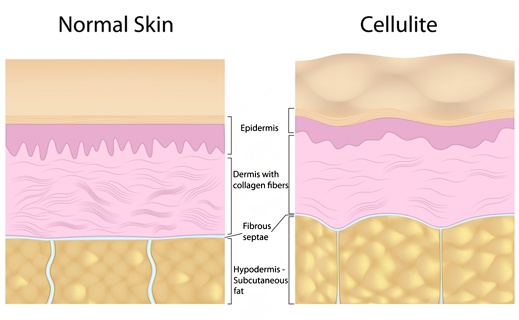 Normal Skin vs Cellulite and it's layers.